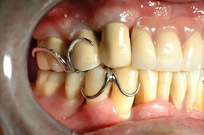 Ganci a filo odontotecnica