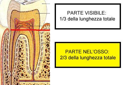 cappelli_alessandro_paradontite_espulsiva_4.jpg
