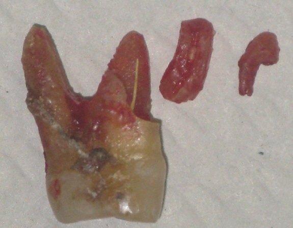 Foto del dente fratturato