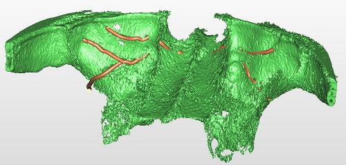 Arterie circonflesse nella parete del seno mascellare