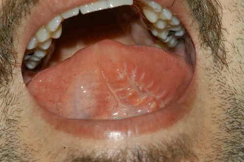 Cicatrice a una settimana sulla sede del prelievo della Lingua