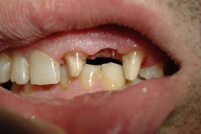 Criteri di scelta tra un ponte ed un impianto nella sostituzione di un singolo dente mancante - Finestra tra i denti ...