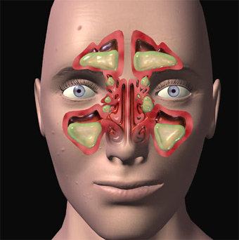 Sinusite cronica: ipertrofia dei turbinati e accumulo di secrezioni catarrali