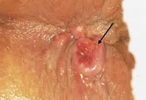 Emorroidi di crema per trattamento