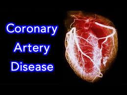 calcoli e problema cardiologico