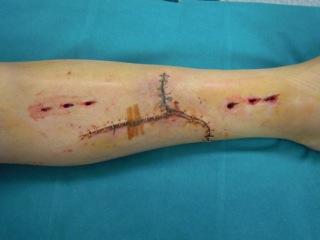 Rimozione del Fissatore Esterno per la conversione in Osteosintesi Interna
