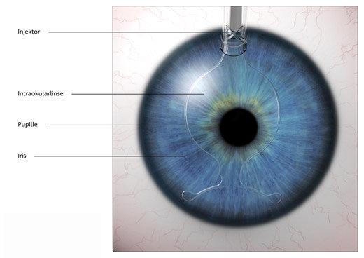 Intervento di impianto di lenti fachiche