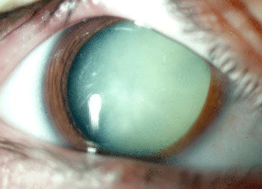 Cataratta e glaucoma
