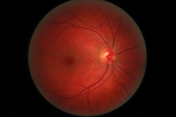 Il fonod oculare con nervo ottico