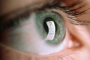 Glaucoma esfoliativo