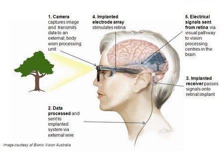 Funzionamento occhio bionico