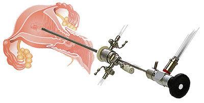 Isteroscopia diagnostica ambulatoriale
