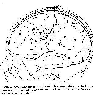 Mappaggio corticale di W. Penfield