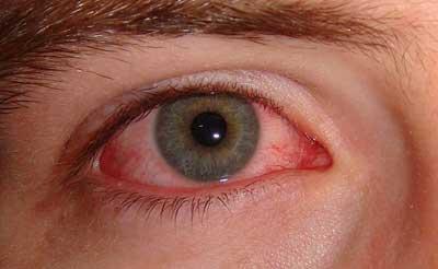 carlo.orione_Dry_Eye