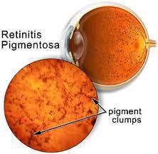 Tipiche chiazze di pigmento sulla retina