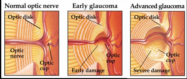 carlo.orione_glaucoma_fasi_danno_nervo_ottico