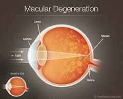carlo.orione_macular_degeneration
