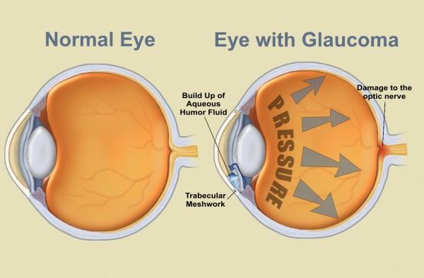 carlo.orione_occhio_normale_e_con_glaucoma