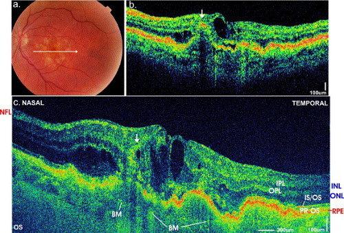 Viene mostrata una AMD vista con OCT e retinografia