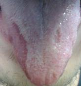 Lingua%20a c g  con unica lesione sul bordo destro