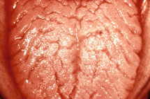 Lingua plicata o cerebriforme