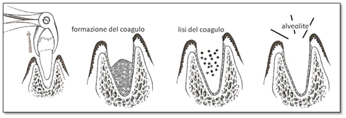 Alveolite