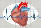 Tutto sull'infarto