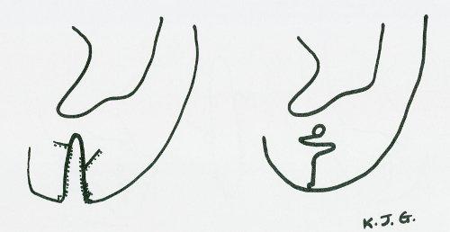 Disegno schematico di come correggere un coloboma auris completo