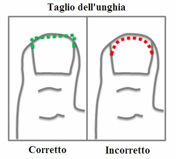 taglio unghia incarnita