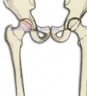 testa femorale deformata e affetta da coxartrosi