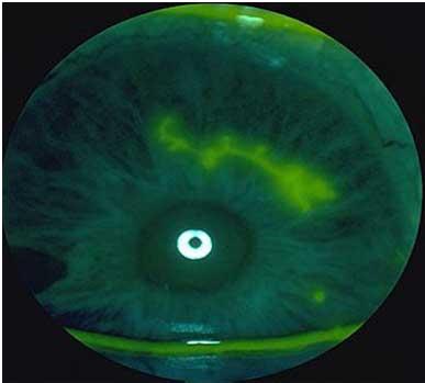 Occhi rossi: cosa fare? | MEDICITALIA.it