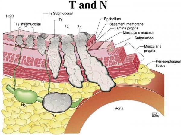 Tumore ai polmoni sintomi diagnosi e prevenzione - Tumore esofago forum ...