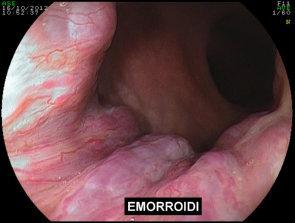 Farmaci per cura di emorroidi esterne