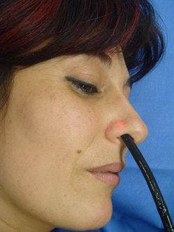 Endoscopia transnasale