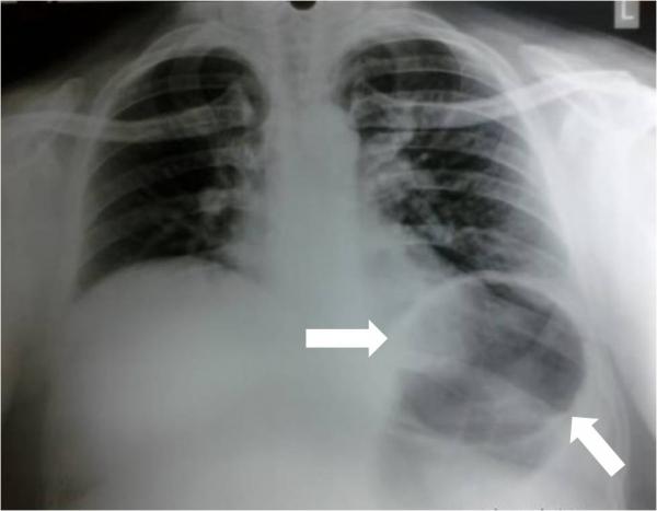 La sindrome gastro cardiaca o sindrome di roemheld - Si mette in tavola si taglia ma non si mangia ...