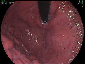 fondo gastrico regolare