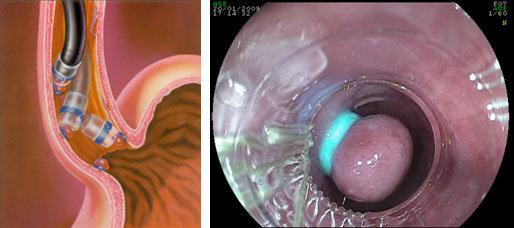 legatura delle varici esofagee