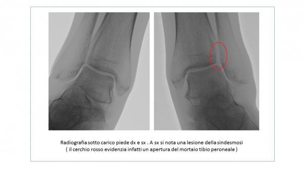 Radiografia sotto carico piede