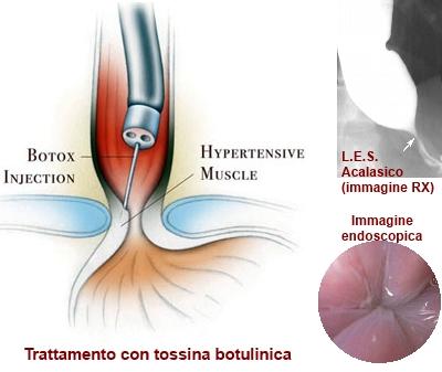 Iniezione di tossina botulinica intracardiale