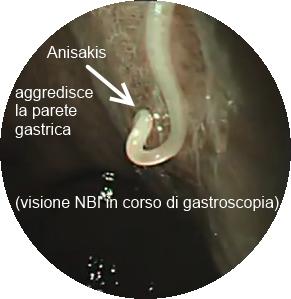 Anisakis - Visione endoscopica