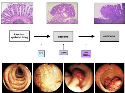 Sequenza adenoma-carcinoma