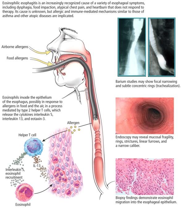 Esofagite Eosinofila