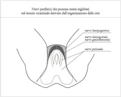 Neuropatia endometriosi