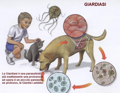 Giardiasi