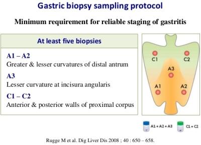 Campionamento bioptico delle gastriti