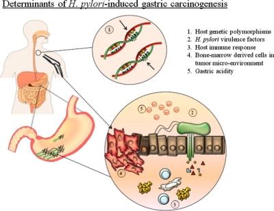 HP - Cancerogenesi