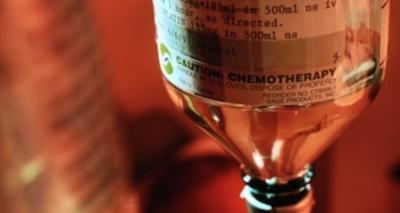 Chemioterapia K pancreas