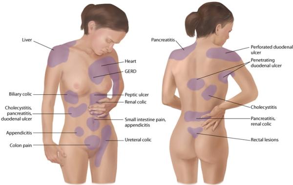 Cancro alle ovaie, l'allarme nei capelli: quel segnale da non sottovalutare