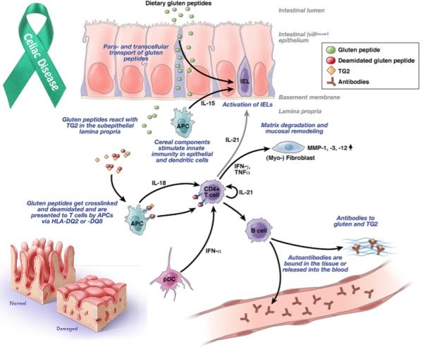 Patogenesi della Celiachia