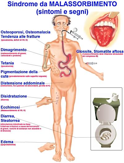 Come togliere hypostases che sta a thrombophlebitis
